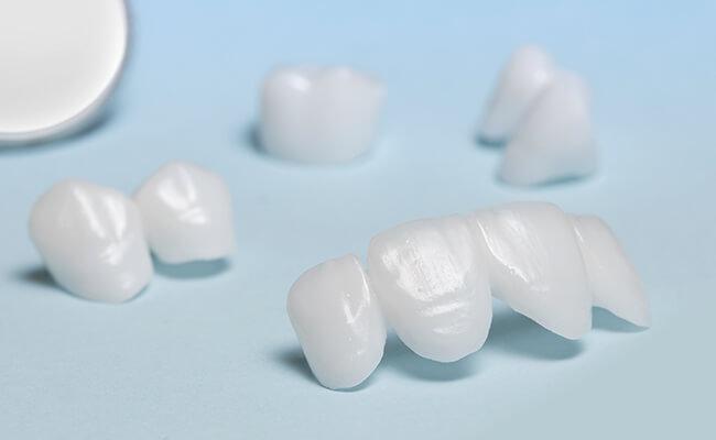 Schmerzfreie Zahnbehandlung