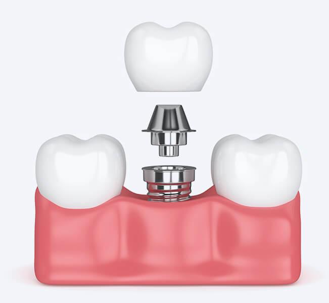 Zahnimplantate modell