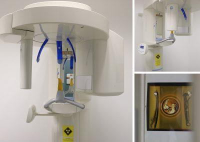 Panorama-Röntgen